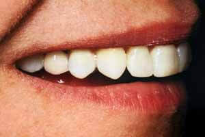 Adult Cosmetic Braces After Treatment