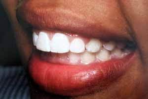 Clear Aligners Invisalign Dentists Oshawa Ontario