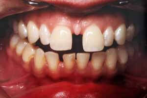 Crooked Teeth BEFORE Invisible Aligners Oshawa ON
