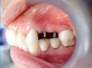 Mini Dental Implants: Step 2