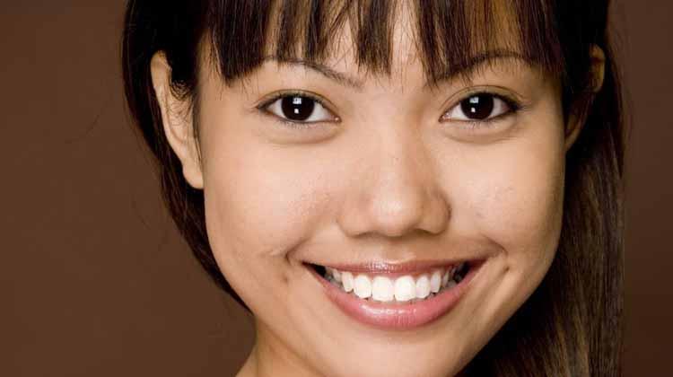 Tooth Bonding Oshawa Dentist
